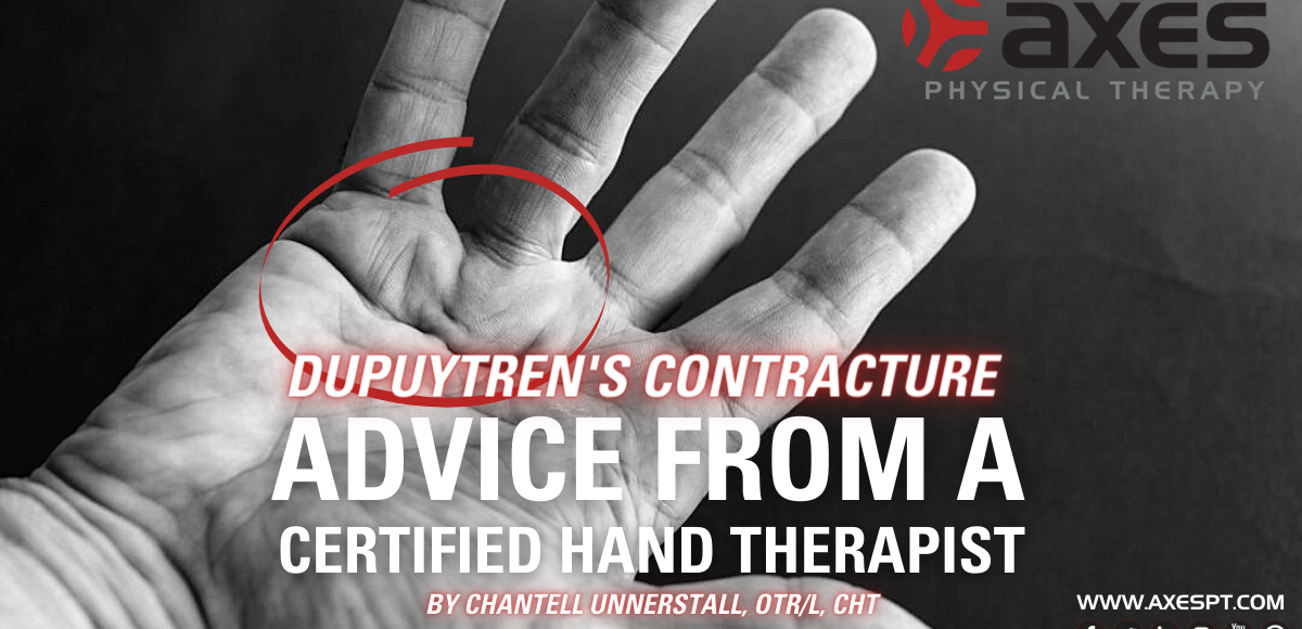 dupuytren's contracture HAND THERAPY